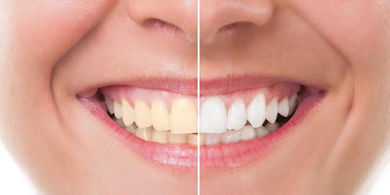 Cara Memutihkan Gigi Secara Alami Yang Mudah Dan Murah
